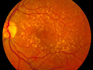 Intermediate age-related macular degeneration